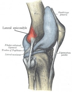 Lateral epicondyle; where IT Band pain is typically felt